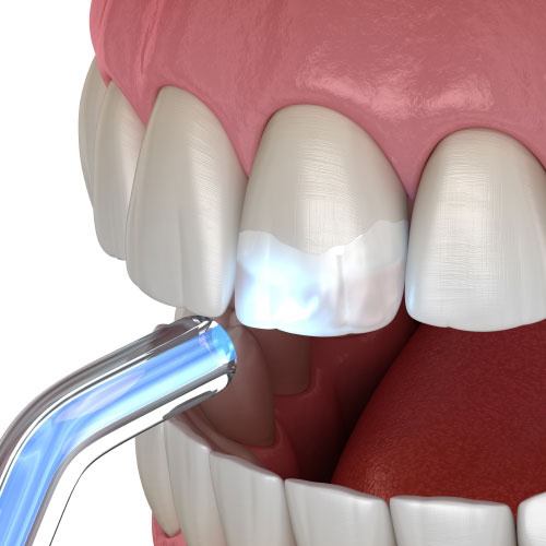 example of the resin being cured during a dental bonding procedure