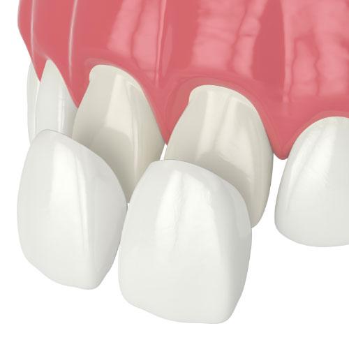 example of a dental veneer applied to teeth