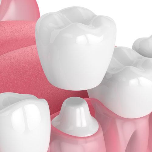 Life Bloom Dental example of a dental crown