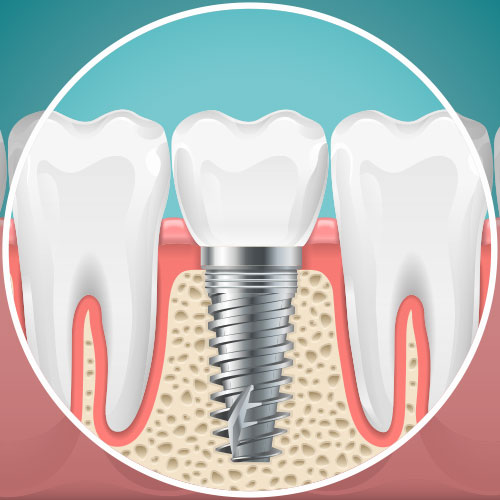 Example of a dental implant.