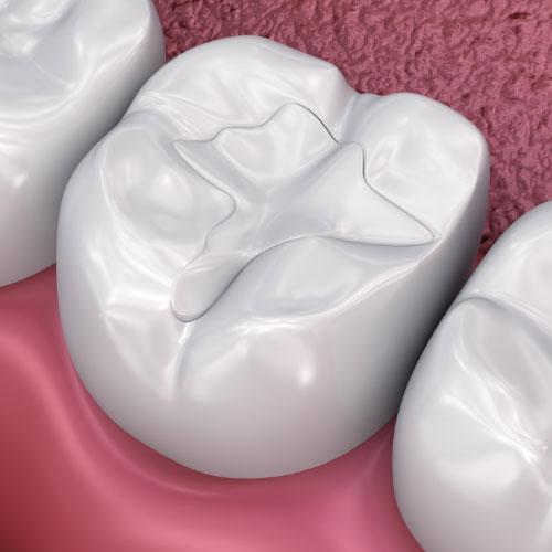 Life Bloom Dental dental filling example graphic