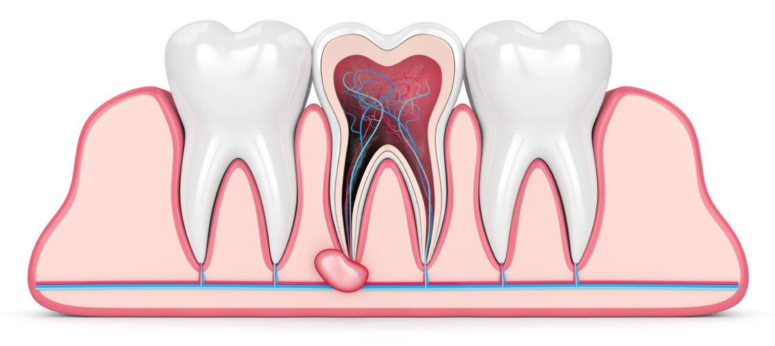 Example of a root canal.