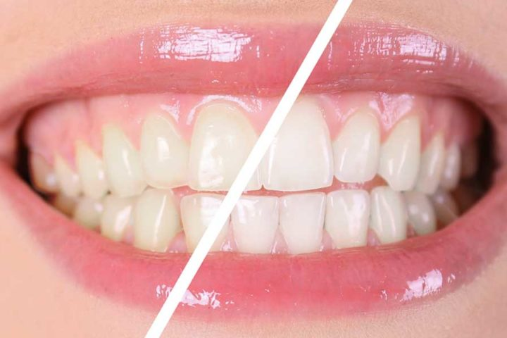Life Bloom Dental - Powered by Portland's Dentist - Teeth Whitening At the Dentist or At Home Header Image
