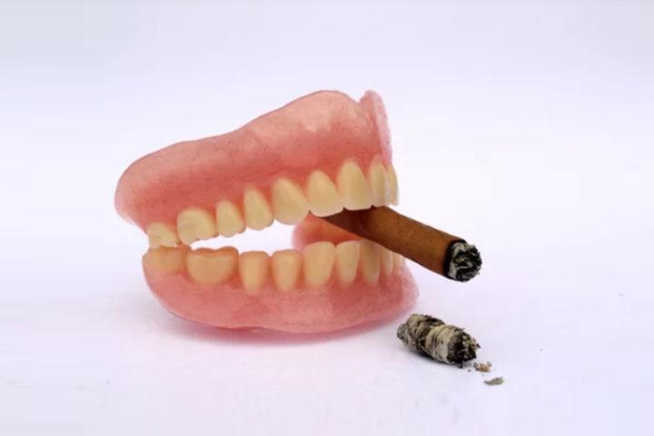 Smoking Oral Health